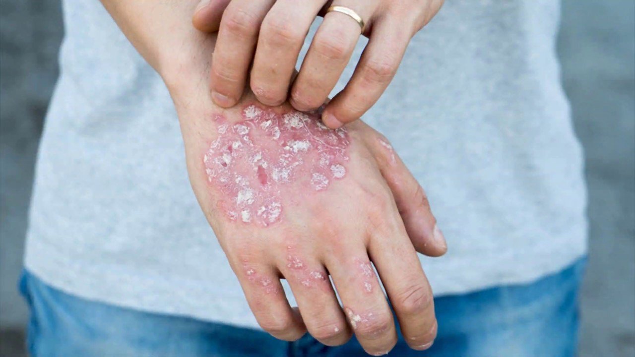 The Psoriasis Strategy Program