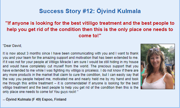 Vitiligo Miracle Book Reviews