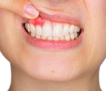 DentaFend Ingredients List - Help to Improve Your Teeth Health