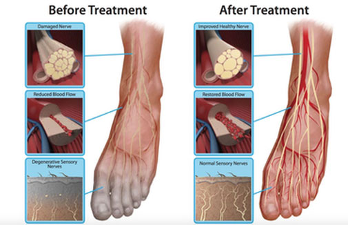 Neuropathy Revolution Program - Scientifically Proven? Check