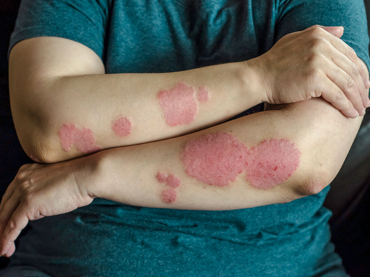Psoriasis Program Guide - Cure Psoriasis?