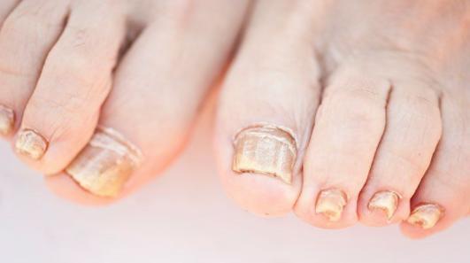 nail fungus no more extra strength