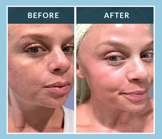 Admire My Skin Trifecta Glow System Reviews