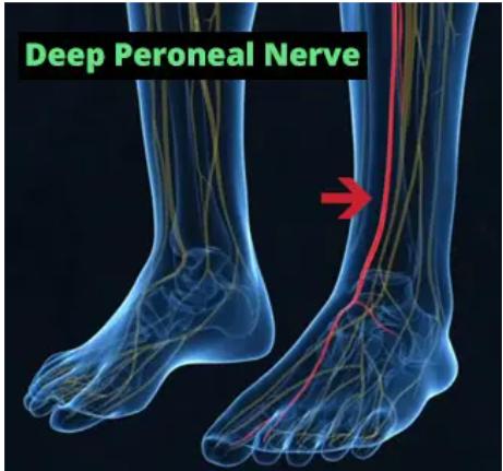 Neuro-Balance Therapy DVD